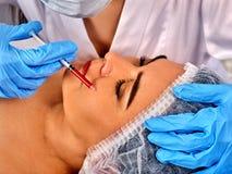 Napełniacz wtryskowa żeńska twarz Plastikowa twarzowa operacja w piękno klinice obraz stock