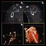 Naramienny CT, przełam humerus Zdjęcia Royalty Free