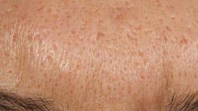 Narben von der Akne auf der Haut eines Mannes stock footage