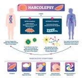 Narcolepsyvektorillustration Infographic märkt sjukdom för muskelstyrka stock illustrationer
