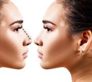 Nariz fêmea antes e depois da cirurgia estética Fotos de Stock Royalty Free