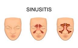 Nasal bihåla inflammation stock illustrationer
