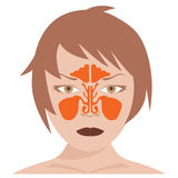 Nasal and frontal sinus. Vector image of nasal and frontal sinus. woman model on white background Stock Photo