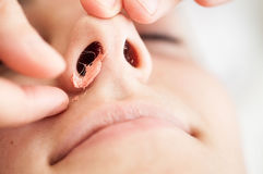 Nasal hair-removal with hot wax Stock Photography