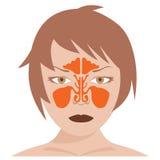 Nasal och frontal bihåla stock illustrationer