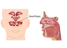 Nasal polyps. Upper respiratory condition as a consequence of sinusitis Stock Images