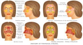 Nasal sinus Stock Images