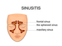 Nasal sinus. inflammation. Illustration of the sinuses. inflammation and edema Stock Photo