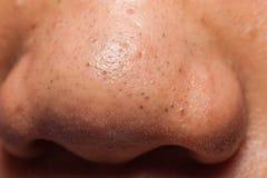 Naso che contiene molto comedone dei brufoli Fotografia Stock