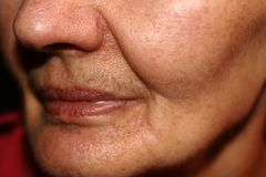 Nasolabial wrinkled fold on the skin of the face. Royalty Free Stock Photos