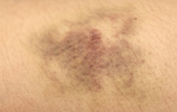 Nasty looking bruise, real Royalty Free Stock Images