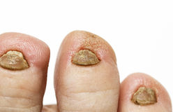 Nasty nails on the foot a fungal disease large Royalty Free Stock Photography
