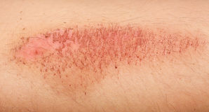Nasty wound Royalty Free Stock Photo