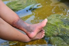 Natural hot spring relieves Deep Vein Thrombosis problems on female legs. Natural hot spring relieves blood circulation, de-stressing, chronic pain, solving royalty free stock images