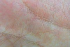 Naturalna ludzka skóra Zdjęcie Royalty Free