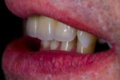 Naturliga seende konstgjorda keramiska tänder Arkivfoto