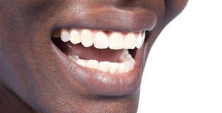 Natuurlijke tanden royalty-vrije stock fotografie