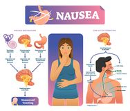 Nausea vector illustration. Labeled medical vomiting explanation scheme. vector illustration