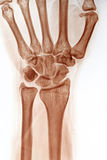 Neagtive Wrist X-ray Royalty Free Stock Photography