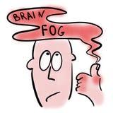 Nebbia del cervello ed artrite reumatoide royalty illustrazione gratis