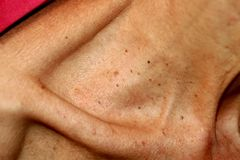 Neck and collarbone in papillomas. Papilloma on the skin. Neck and collarbone in papillomas. Papilloma on the skin stock photo