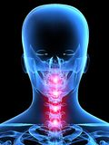 Neck pain. 3d rendered x-ray illustration of a human painful neck Stock Photo