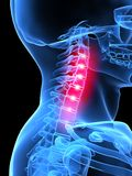 Neck pain. 3d rendered x-ray illustration of a human painful neck Royalty Free Stock Image
