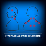 Neck pain Royalty Free Stock Images