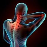 Neck pain Royalty Free Stock Image