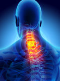 Neck painful - cervica spine skeleton x-ray, 3D illustration. Stock Photography