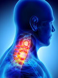 Neck painful - cervica spine skeleton x-ray, 3D illustration. Royalty Free Stock Image