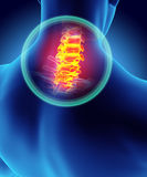 Neck painful - cervica spine skeleton x-ray, 3D illustration. Royalty Free Stock Photos