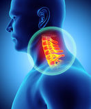 Neck painful - cervica spine skeleton x-ray, 3D illustration. Royalty Free Stock Images
