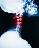 Neck x-ray and pain. Detail of neck x-ray image and red zone pain Stock Photography