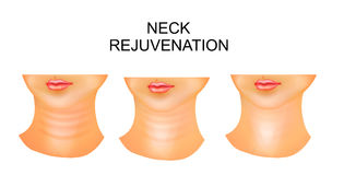 Neck, wrinkles, rejuvenation Royalty Free Stock Photography