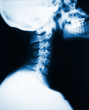 Neck x-ray Royalty Free Stock Photos