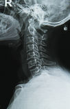 neck x-ray image Stock Images
