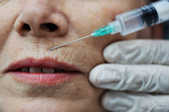Needle injection on mature face. Needle injection on mature woman face Royalty Free Stock Photo