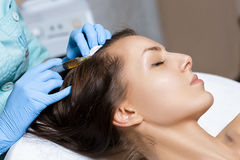 Needle mesotherapy. Cosmetic been injected in woman`s head. Thrust to strengthen hair and their growth. Needle mesotherapy. Cosmetic been injected in woman`s Royalty Free Stock Photo