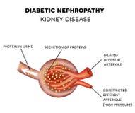 Nefropatia diabetica, anatomia del glomerulo royalty illustrazione gratis