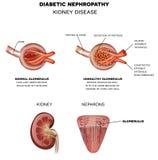 Nefropatia diabetica, malattia renale illustrazione vettoriale