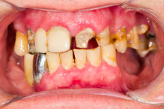 Neglected Denture Royalty Free Stock Photo