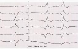 Nehmen Sie ECG mit akutem Zeitraum des Myokardinfarkts auf Stockfotografie