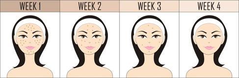 Nenhuma acne ilustração royalty free