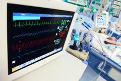 Neonatala ICU med ECG övervakar Arkivbilder