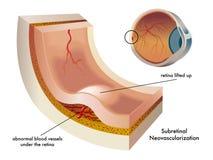 neovascularization υποαμφιβληστροειδ διανυσματική απεικόνιση