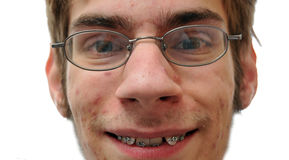 Nerd smiling showing his braces Stock Image