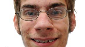 Nerd smiling showing his braces Stock Image