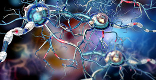 Nerve cells, concept for Neurological Diseases, tumors and brain surgery. 3d illustration of nerve cells, concept for Neurological Diseases, tumors and brain Royalty Free Stock Image