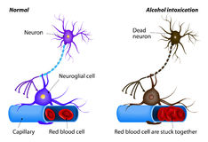 Nerve damage caused by heavy alcohol intoxication. Nerve damage caused by heavy drinking. Alcohol being toxic to nerve cells. Alcohol dissolves the protective stock illustration